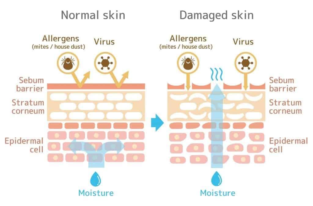 skin cross-section