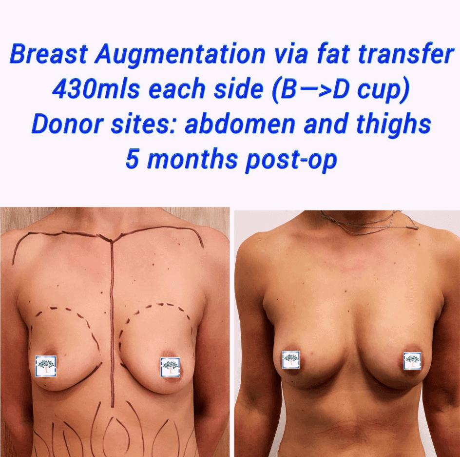 breast fat transfer 2