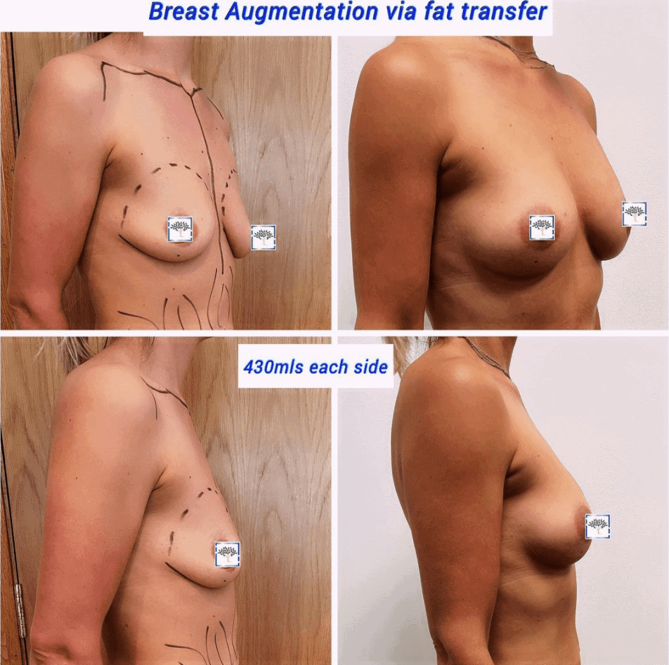 breast fat transfer