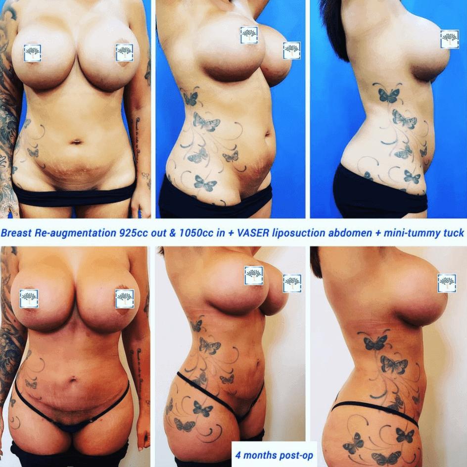 breast re aug vaser, lipo and mini tum 2 - same person different angle