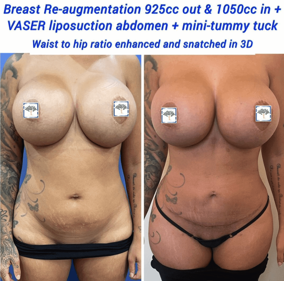 breast re aug vaser, lipo and mini tum