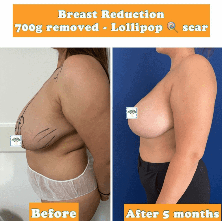 breast reduction at the Harley Clinic